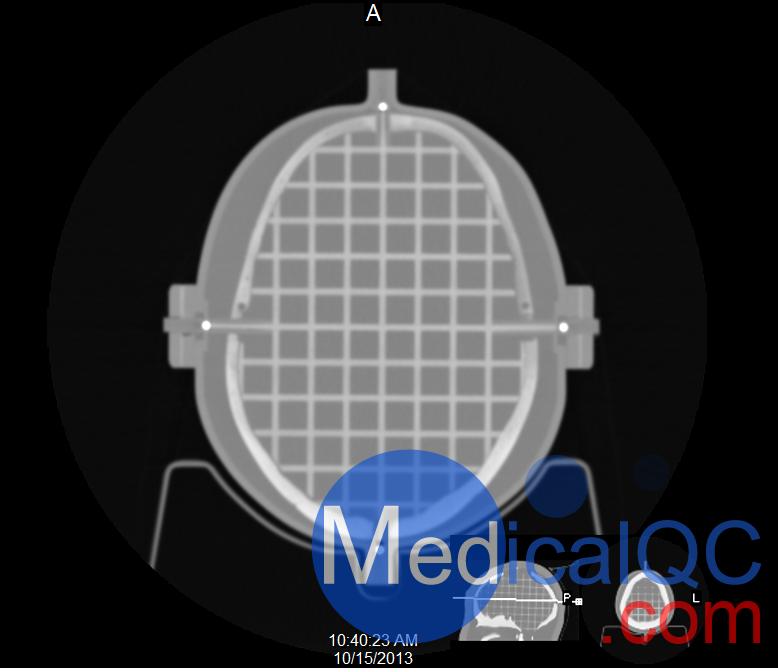 CIRS 603A头部模体CT图像