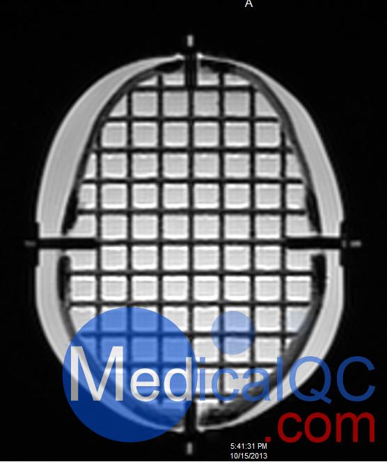 CIRS 603A头部模体MRI图像