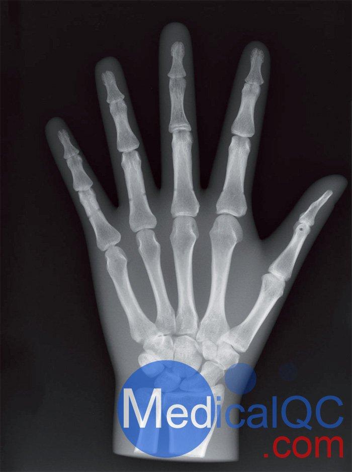 Erler Zimmer天然骨骼模体,Erler Zimmer手掌模体效果