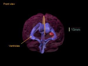Truephantom BN-A01标准成人脑模体