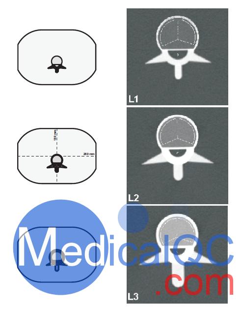 QRM-ESP脊柱模體三個脊椎插件的橫斷面剖視圖